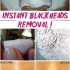 Say goodbye blackheads in 15 minutes !