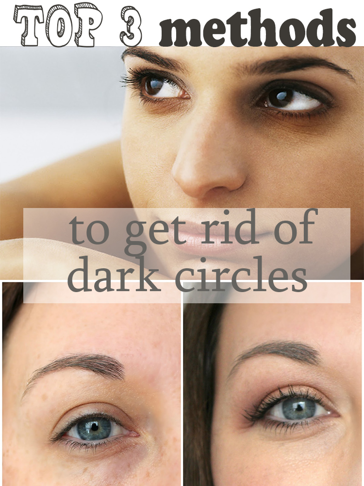 Top 3 remedies to get rid of dark circles under eyes